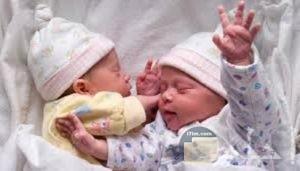 صورة توأم حديث الولادة