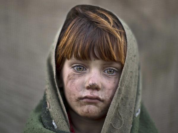 صورة مؤلمة جداً لطفل فقير