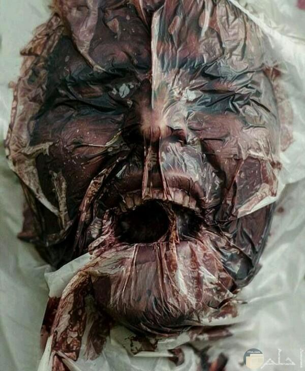صورة مرعبة جدا لرجل ميت ووجه داخل كيس بلاستيك