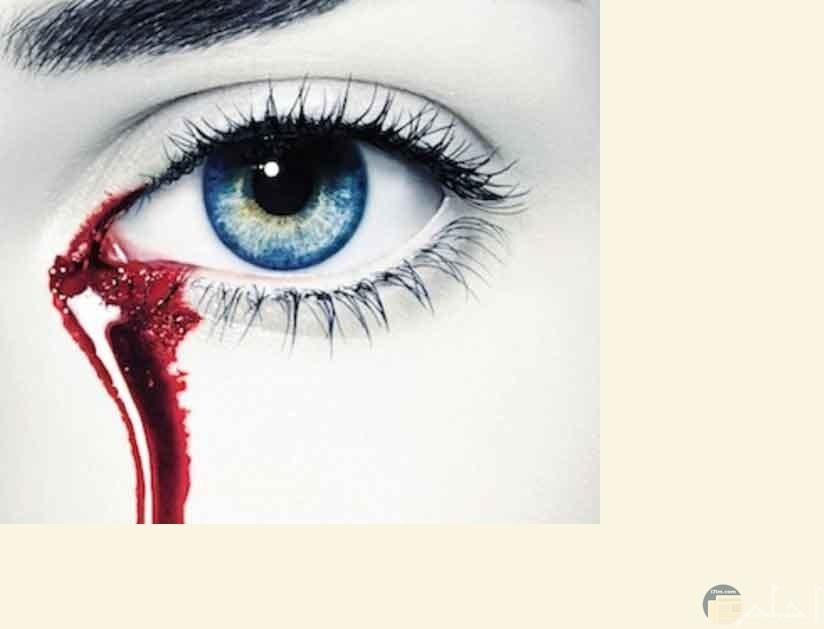 عيون تبكي دماً