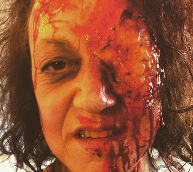 صورة مرعبة لرجل فقد نصف وجهه