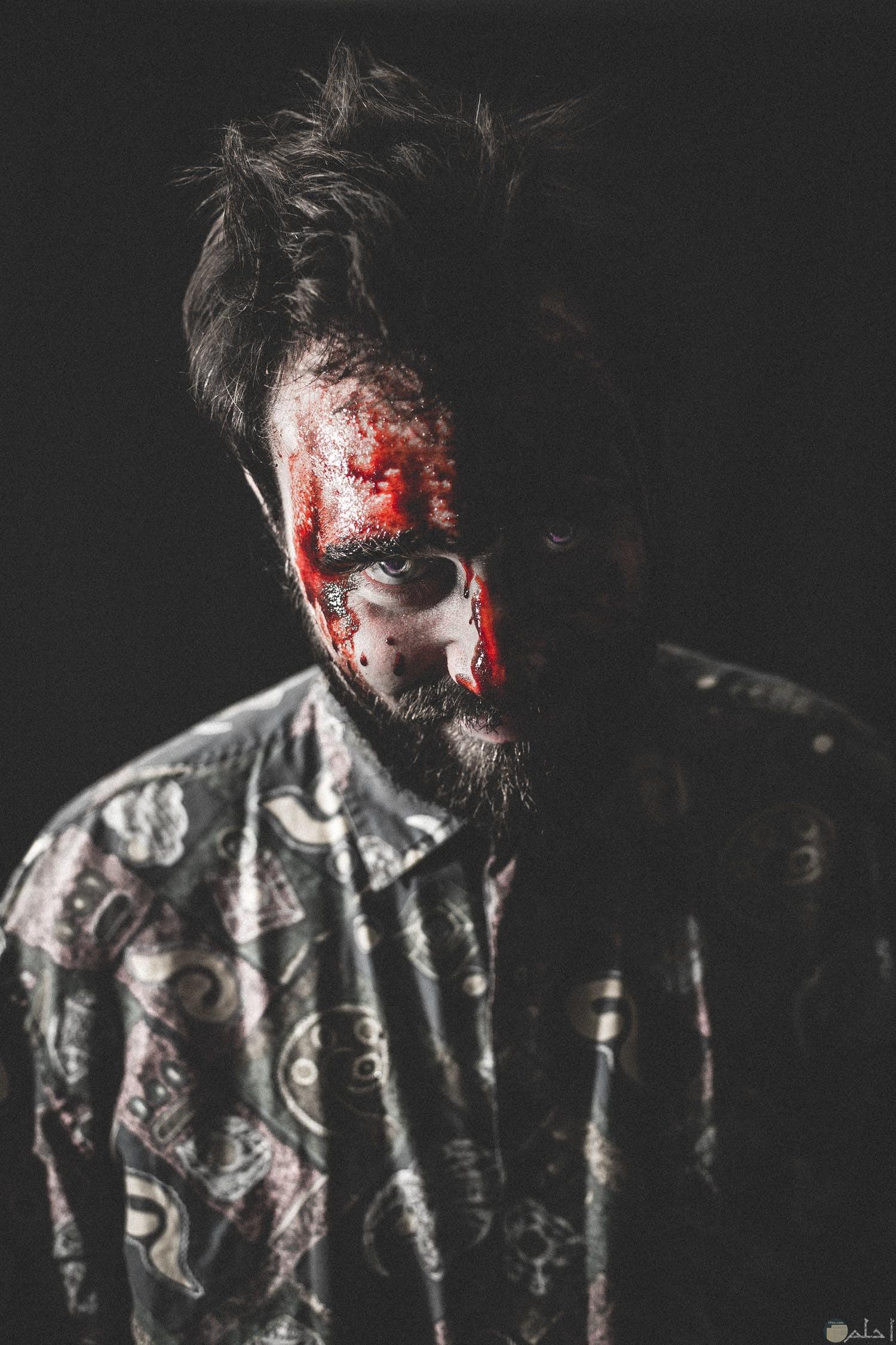 شخص ملطخ بالدماء