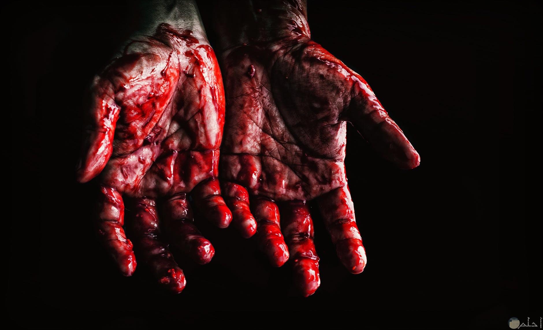 ايدي تنزف دماً