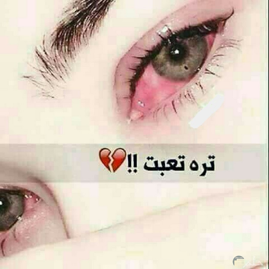 عيون تبكي حمراء من شده الحزن مكتوب علي الصوره تره تعبت