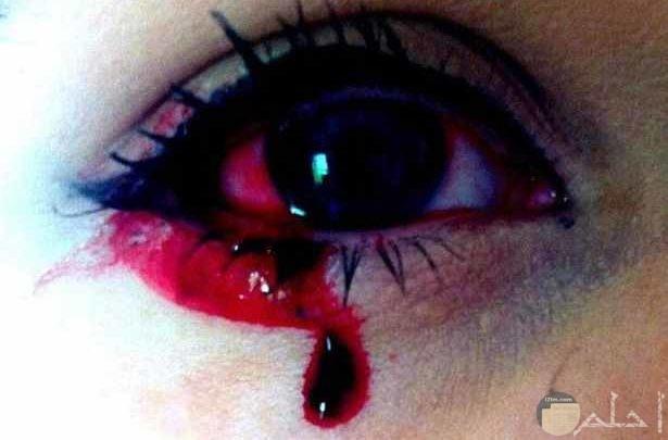 صور دم
