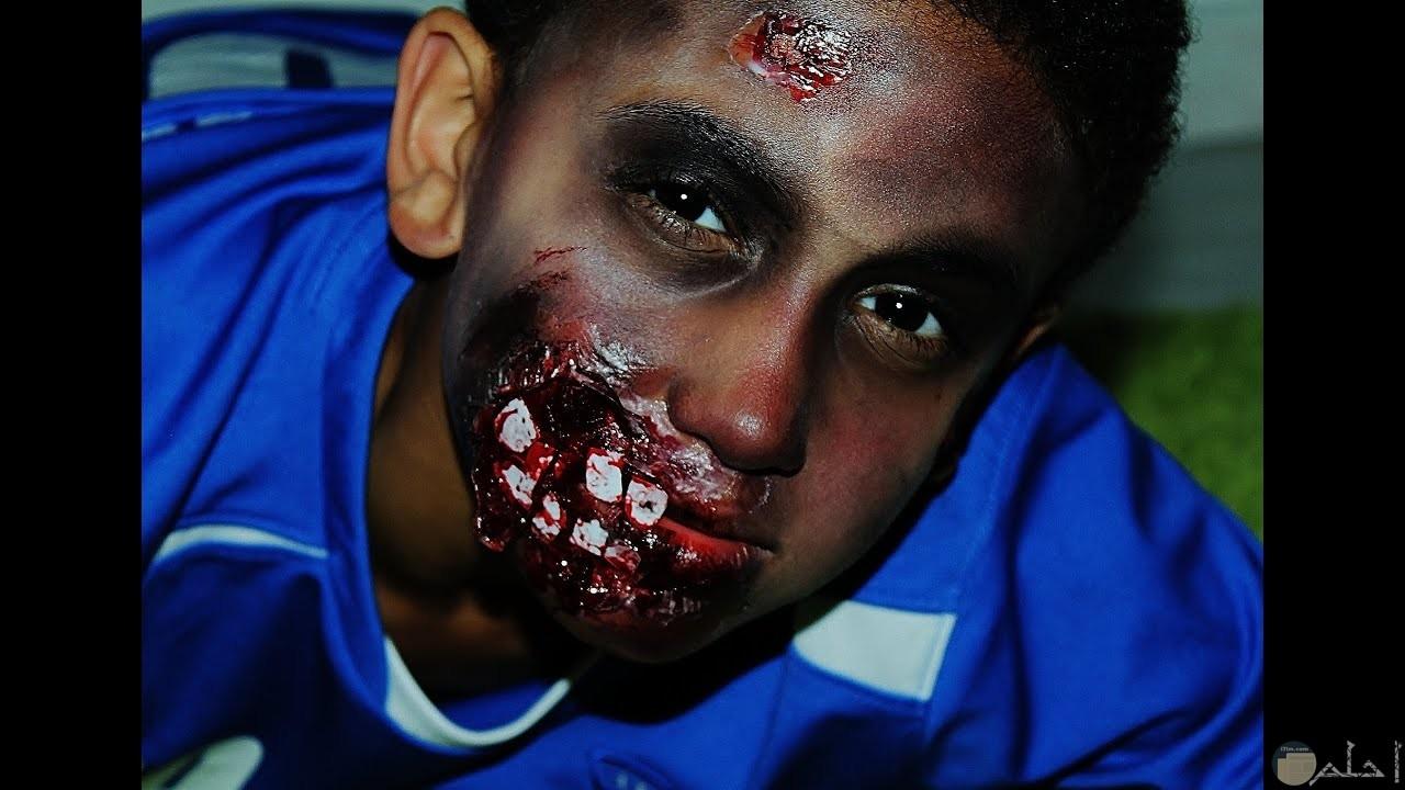 صورة مقربة لوجه شاب بعد صنع مكياج الزومبي بشفة متآكلة و أسنان ظاهرة و إصابات و دم بالوجه.